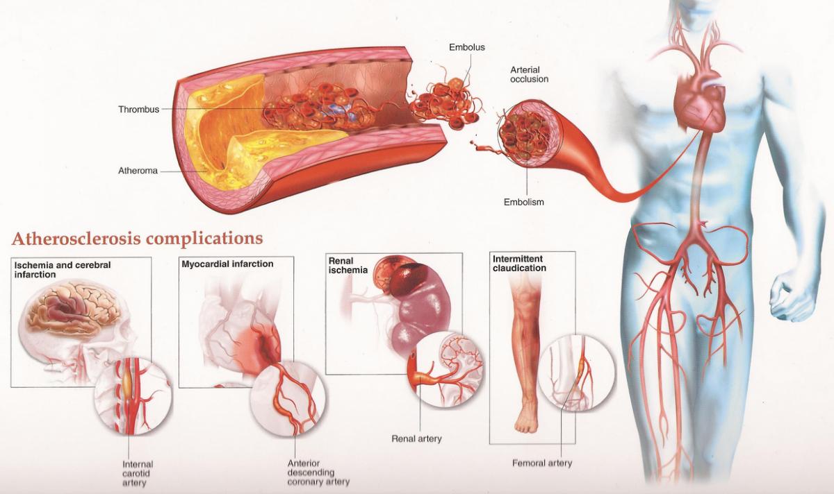 Slike-su-za-kardioloski-pregled-2-1200x712.png